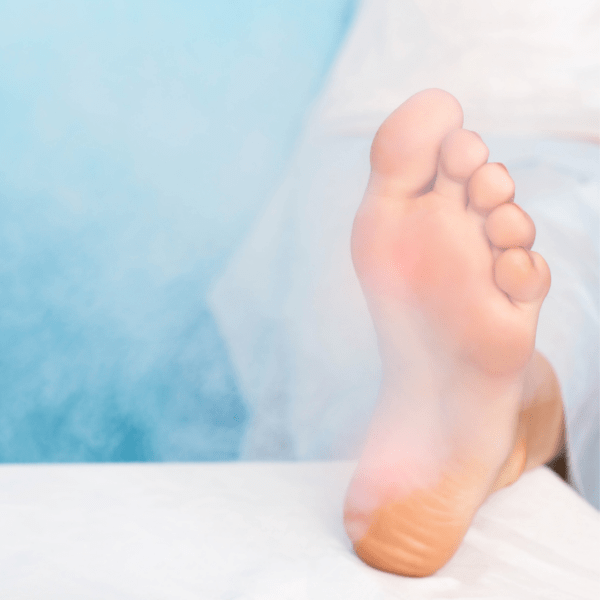 Foot Cryotherapy on Long Island